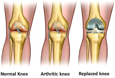 ортомолекулярное лечение суставов в киеве